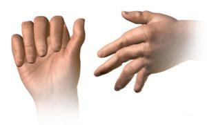 Ketamine TherapyTreating Rheumatoid Arthritis