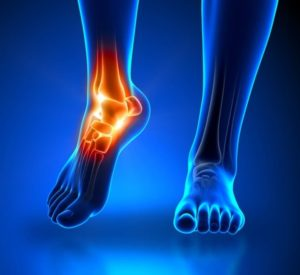 Ketamine Therapy Reduces CRPS Pain