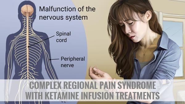 Complex Regional Pain Syndrome (CRPS) Treatment