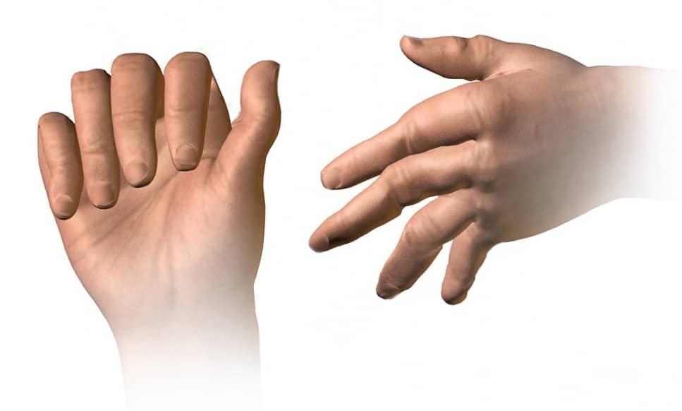 Ketamine Therapy Shows Promise for Treating Rheumatoid Arthritis