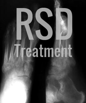 Ketamine IV Therapy Can Help With Reflex Sympathetic Dystrophy (RSD)