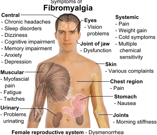 IV Ketamine Infusion Therapy to Help Manage the Pain of Fibromyalgia